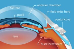 Causes of Glaucoma: