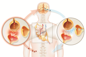 How Back Pain And Neuropathic Pain Are Linked?